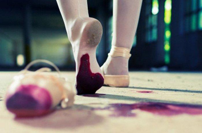 Танці до крові.
