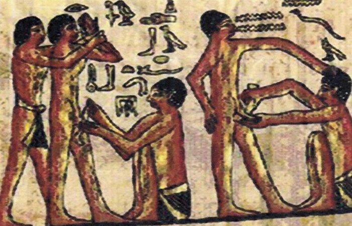 Обрізання в Стародавньому Єгипті. / Фото: listverse.com